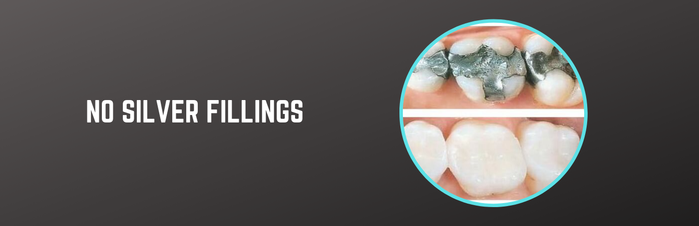 No Silver Fillings, Select Dental & Denture Centre, Exmouth, Devon
