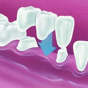 Bridge Dental Treatment, Select Dental & Denture Centre, Exmouth, Devon