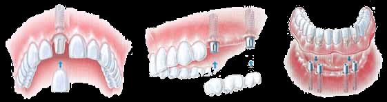 Imaplant Retained dentures, Select Dental & Denture Centre, Exmouth, Devon