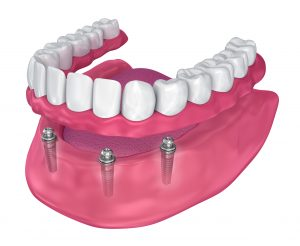 Implant Retained Dentures, Select Dental & Denture Centre, Exmouth, Devon