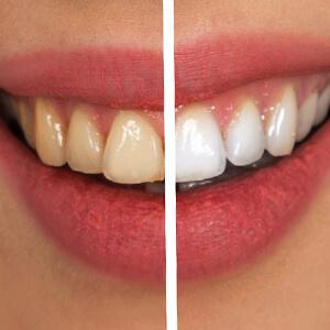 Teeth Whitening, Select Dental & Denture Centre, Exmouth, Devon